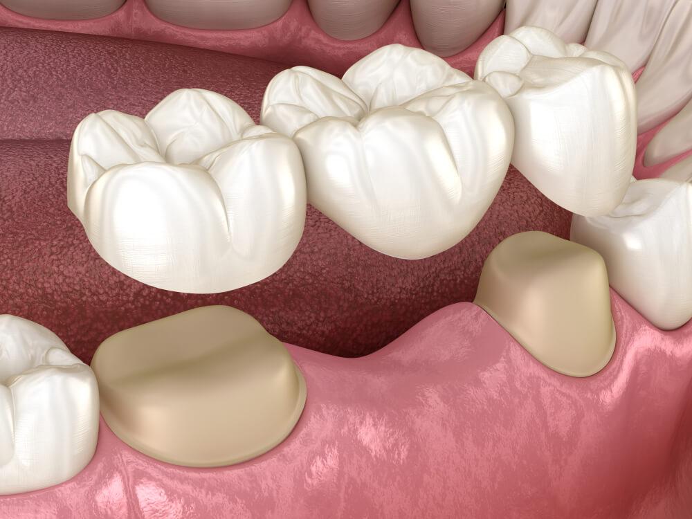 Dental bridge of teeth over molar and premolar