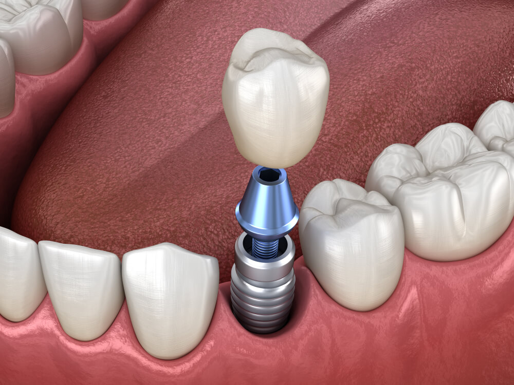 tooth crown installation over implant abutment