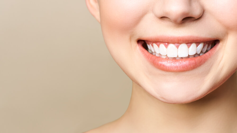 woman with perfect white teeth